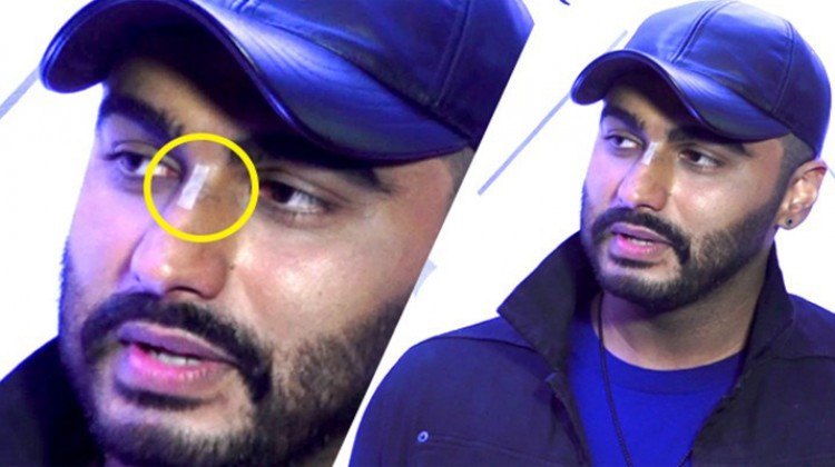 It is a nice memory of Panipat: Arjun Kapoor on the nose injury on sets of Panipat